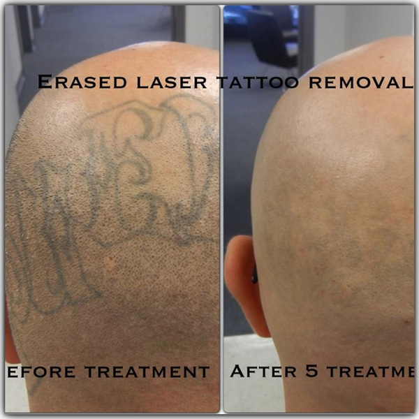 Before & After   Erased Laser Tattoo Removal