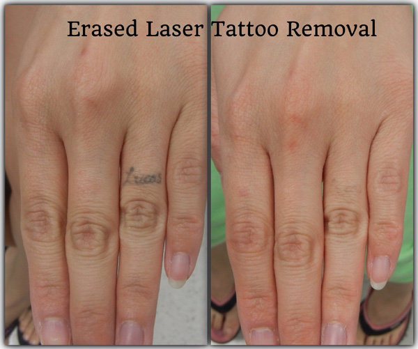 Before & After | Erased Laser Tattoo Removal