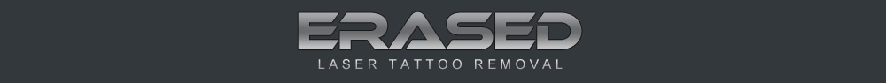Erased Laser Tattoo Removal, Las Vegas